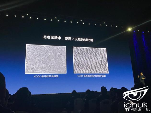这是普通导尿管和采用鲨纹技术的导尿管在使用 7 天后的表面对比图